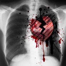 broken heart x-ray